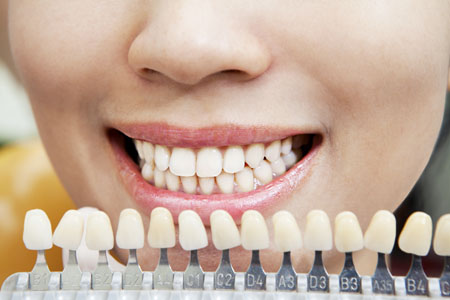 dental-veneers20153