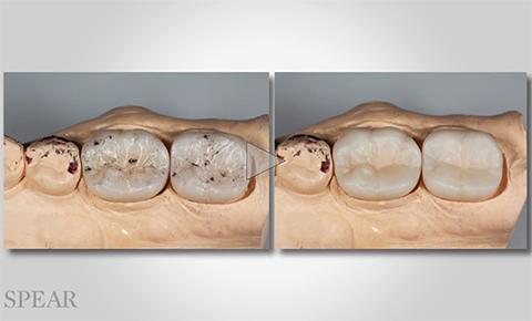 zirconia-restorations-ad
